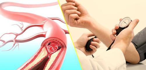 Tăng huyết áp là bệnh gì?
