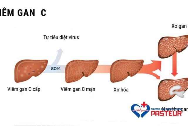 Viêm gan C là một bệnh truyền nhiễm nguy hiểm