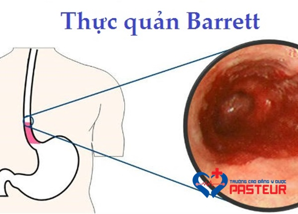 Bệnh Barrett thực quản là gì?