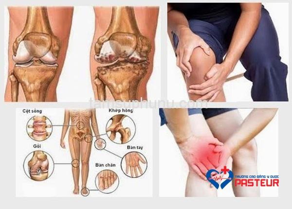 Các biện pháp điều trị đau khớp gối ở người trẻ tuổi