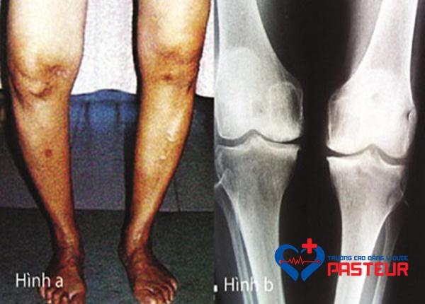 Bệnh Paget xương là bệnh gì?