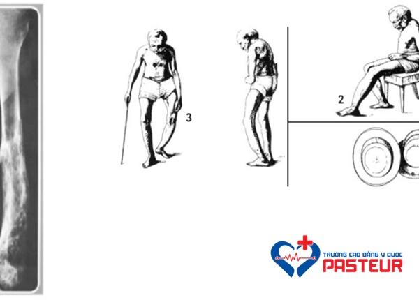 Điều trị và phòng ngừa bệnh Paget xương