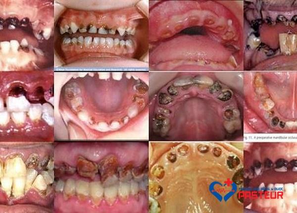 5 bệnh răng miệng thường gặp nhất hiện nay