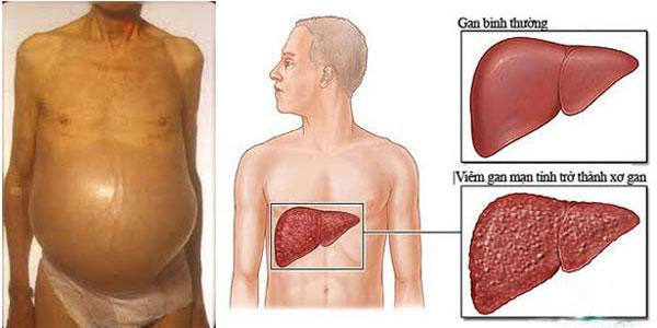 Các biến chứng của viêm gan B