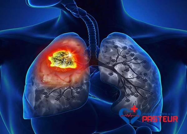Chẩn đoán bệnh bụi phổi amiăng như thế nào?