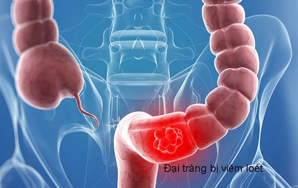 Các biện pháp phòng ngừa viêm loét đại tràng