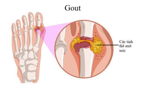 Chế độ ăn phù hợp cho bệnh nhân bị Gout