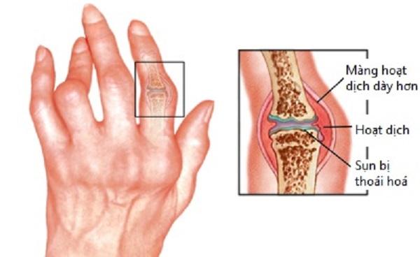 Dấu hiệu của bệnh thấp khớp