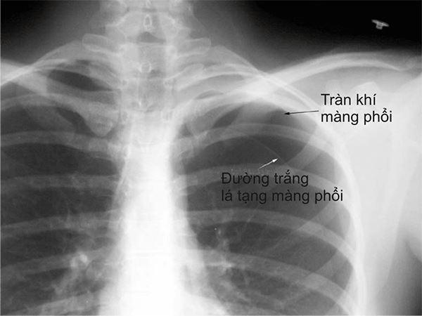 Dấu hiệu và các biến chứng khi khí tràn vào màng phổi