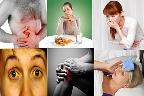Biểu hiện của viêm gan B cấp tính