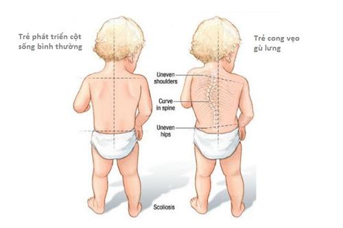 Nguyên nhân dẫn đến gù lưng ở trẻ nhỏ