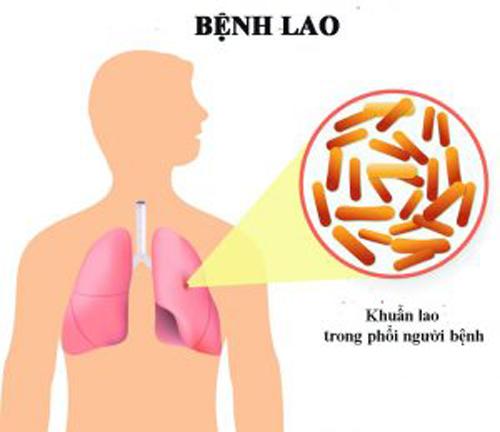 Nguyên nhân nào gây ra bệnh lao?
