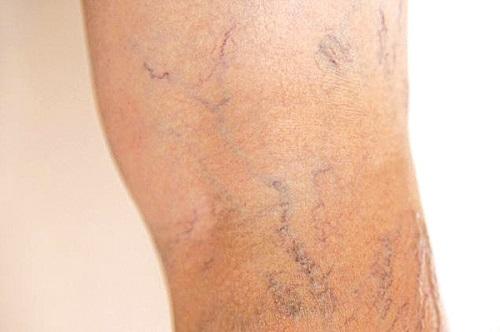 Triệu chứng của bệnh lý suy giãn tĩnh mạch chân là gì?