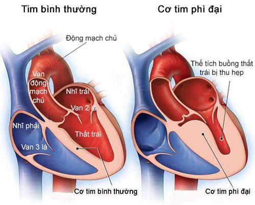 Bệnh phì đại cơ tim là bệnh gì?