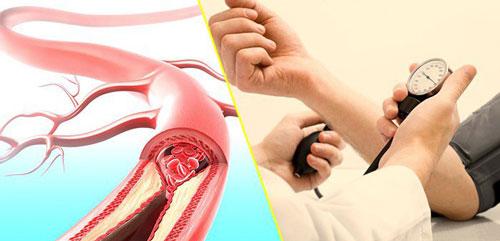 Chẩn đoán tăng huyết áp