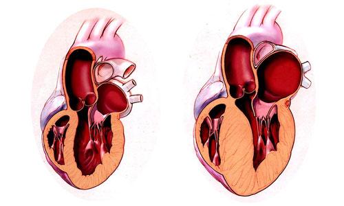 Điều trị hiệu quả bệnh phì đại cơ tim