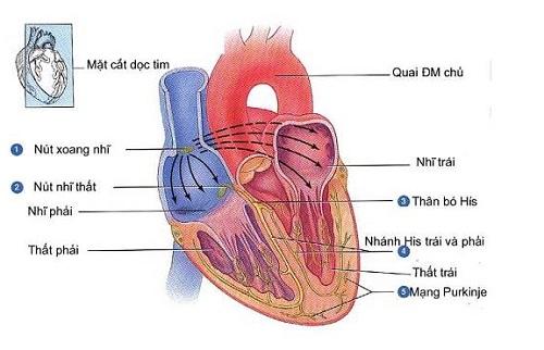 Nguyên nhân gây bệnh phì đại cơ tim