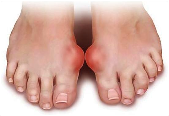 Nguyên nhân gây nên bệnh gout