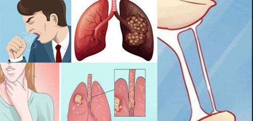 Những dấu hiệu sớm cảnh báo ung thư phổi