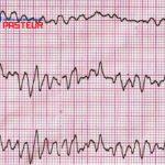 Các dấu hiệu cảnh báo rối loạn nhịp tim là gì?