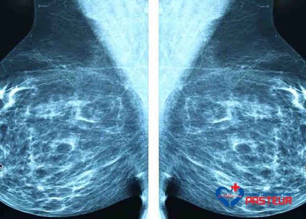 X-quang Ung thư vú