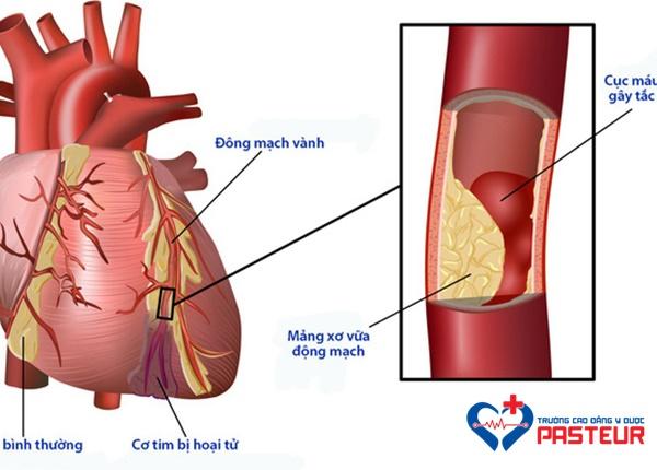 Biến chứng tim mạch của bệnh nhân đái tháo đường
