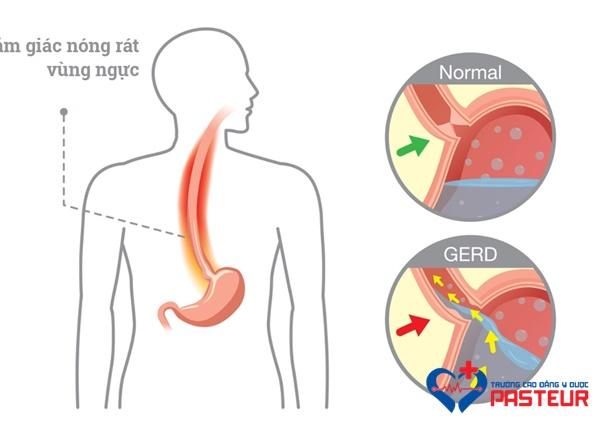 Bệnh nhân trào ngược dạ dày- thực quản cần lưu ý gì?